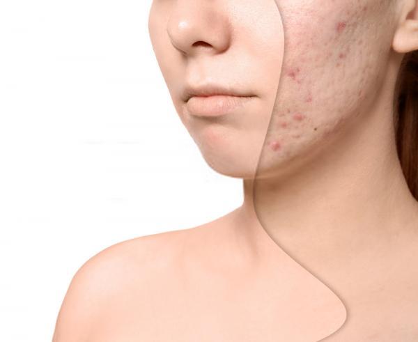 acne photo