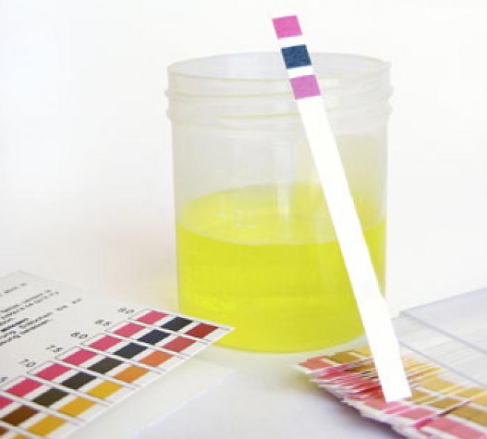 Urinalysis   Vital Chi Wellness